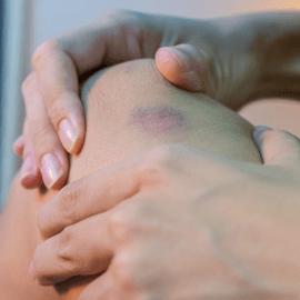 Lesión de tejidos blandos
